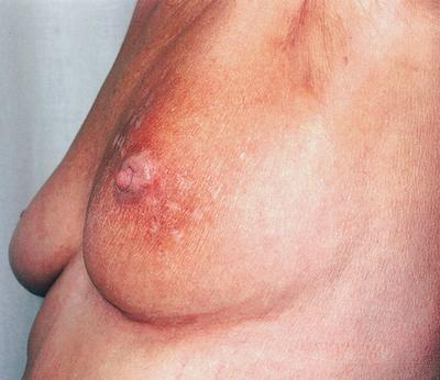breast_cancer_radiation